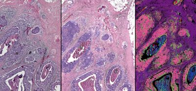 Stainless imaging of cancer