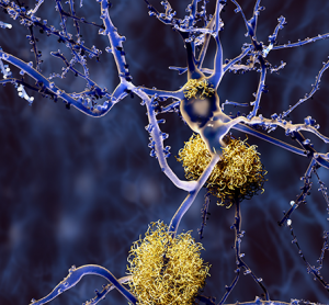 Webinar: Phenotypic assays for CNS disease drug discovery