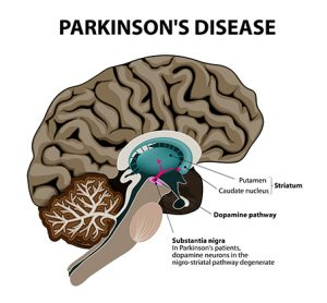 Webinar: in vitro phenotypic assays for Parkinson's disease