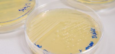 petri dishes containing bacterial colonies