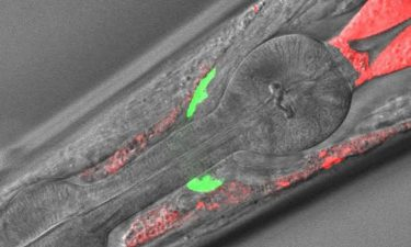 New worm model could aid in the study of rare disease