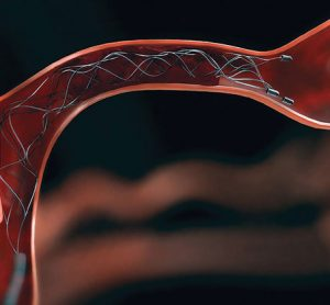 New study proves e-ASPECTS could predict benefit of mechanical thrombectomy
