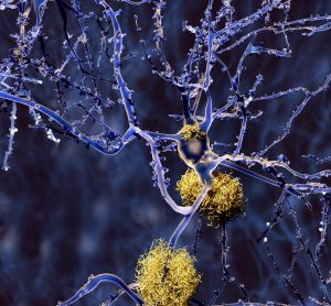 amyloid plaques aggregated around neurons