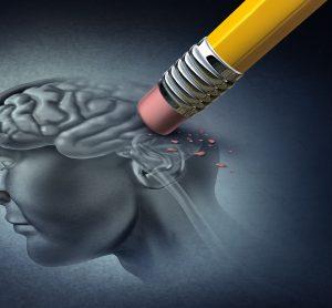 rubber erasing image of the human brain