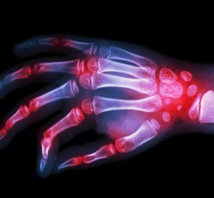 Small molecule could make a big difference for arthritis patients