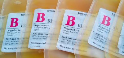 bags of yellow-coloured blood plasma labelled for use as therapeutics