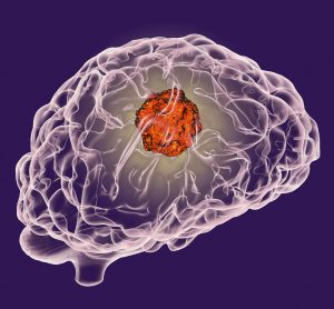 cartoon image of a brain with a large red ball inside representing a tumour