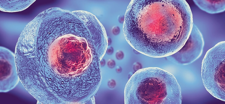 Advanced biomaterial improves stem cell therapy for strokes