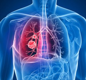 New biomarker identified for early diagnosis of lung cancer