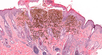 NGLY1 melanoma