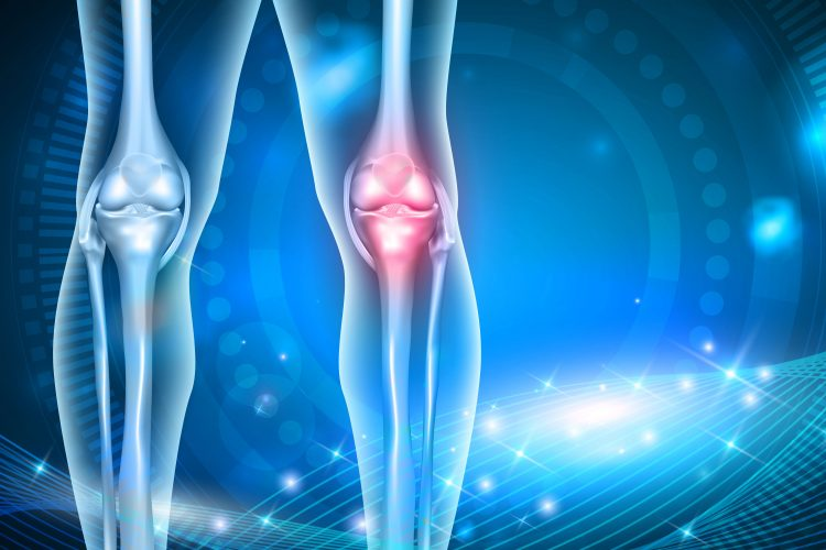 Scientists Discover Possible Genetic >> Genetic Study Reveals Possible New Routes To Treating Osteoarthritis