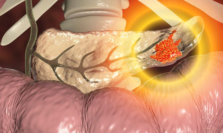 Overcoming resistance in pancreatic cancer treatment