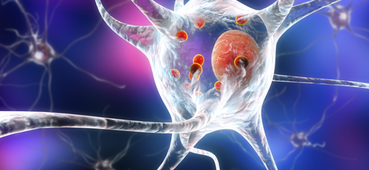 New evidence sheds light on how Parkinson's disease may happen