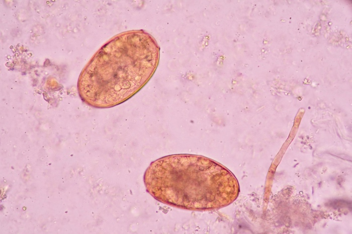 schistosomiasis infections
