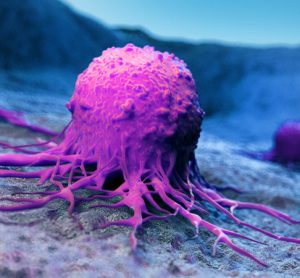 Metastising cancer cell