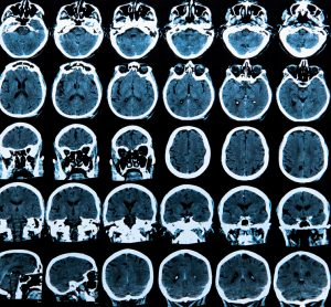 MRI scans of brains - ligands in brain