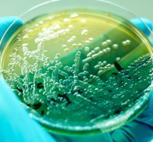 Pseudomonas aeruginosa in petri dish
