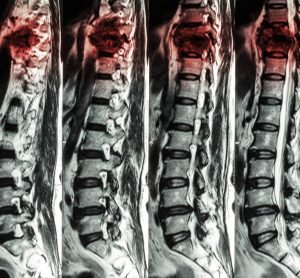 MRI scans showing a spinal cord injury in the thoracic region getting worse with time