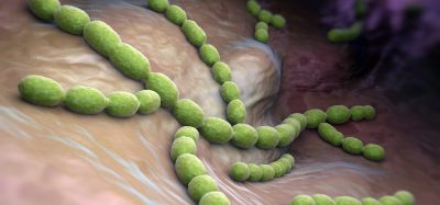 long and thin streptococcus pneumoniae bacteria in the lungs